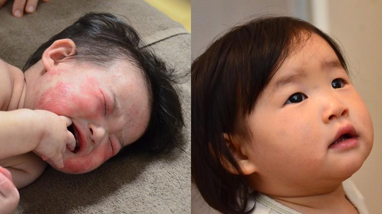 湿疹 顔 乳児