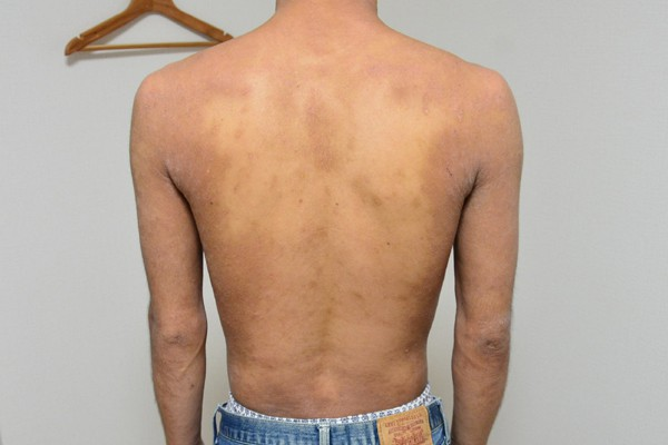 症例写真 大人 アトピー 上半身 腰 背中 肩 腕