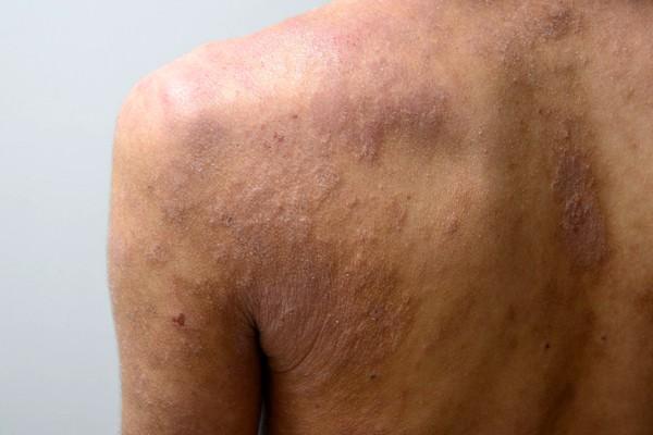 肌の機能が低下した肩のアトピー