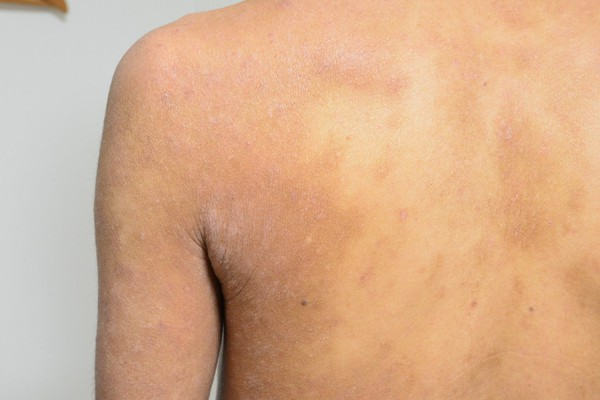 症例写真 大人 アトピー 肩 肩甲骨 脇