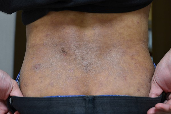 肌の機能が低下した腰のアトピー