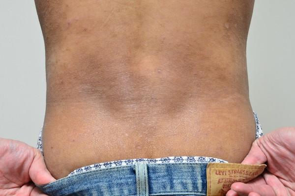 施術で肌のターンオーバーが改善してきた腰のアトピー