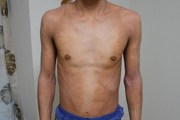 症例写真 大人 アトピー 上半身 お腹 胸