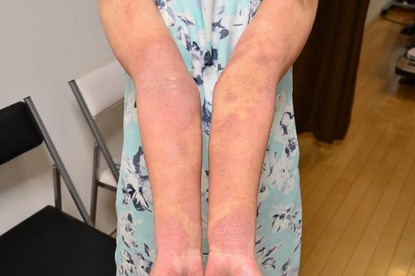 ステロイドと保湿で悪化した腕のアトピー