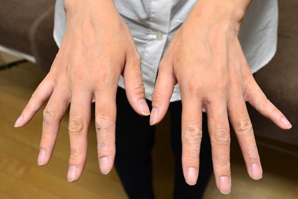 症例写真 大人 アトピー 手の甲 指
