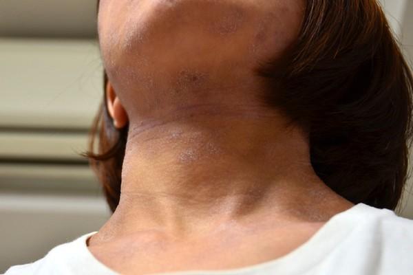 皮膚の血行が悪くなった首のアトピー