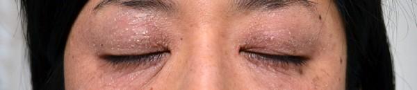 保湿で悪化した目の周りのアトピー