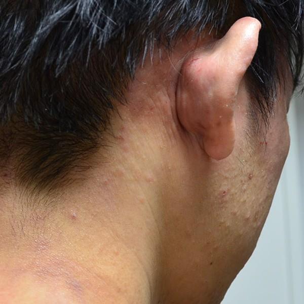 ステロイドで悪化した耳周りのアトピー