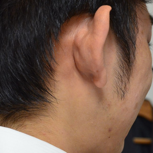 施術で改善してきた耳周りのアトピー