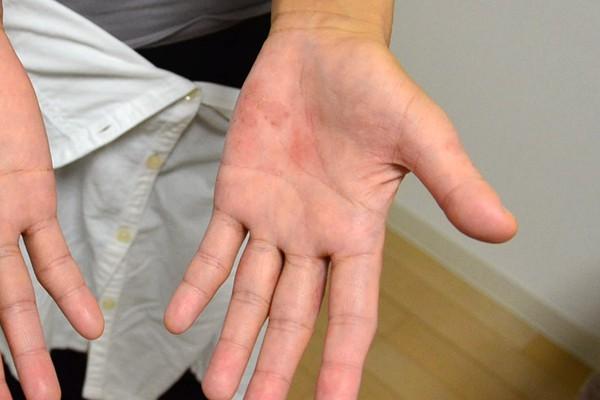 保湿依存で悪化した手のひらの湿疹