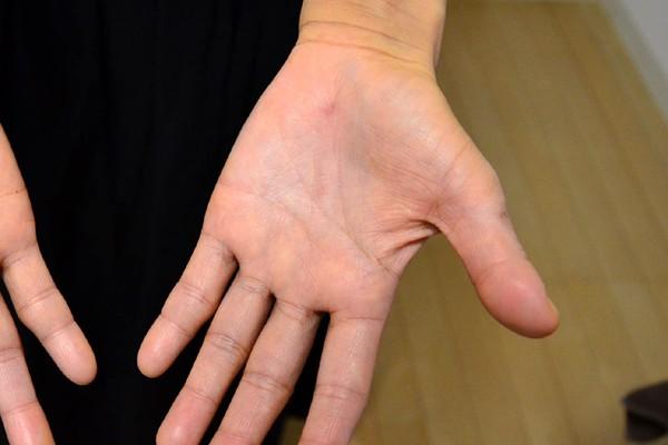 施術で改善してきた手のひらの湿疹