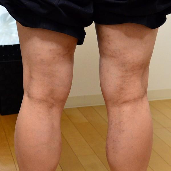 施術で改善してきた脱ステ後の湿疹