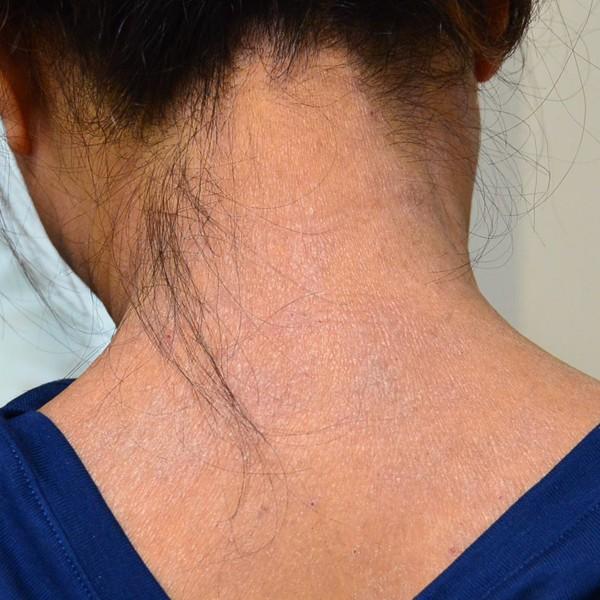 施術で改善してきた首のアトピー