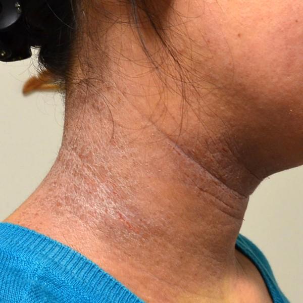 アレルギーで悪化した首のアトピー