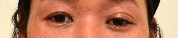 アレルギーで悪化した目の周りのアトピー