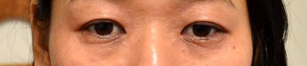 症例写真 大人 アトピー 顔 目