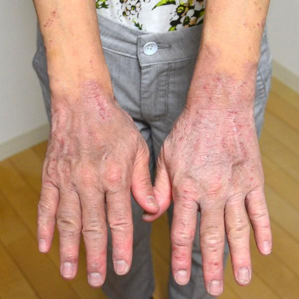 保湿依存で悪化した手のアトピー