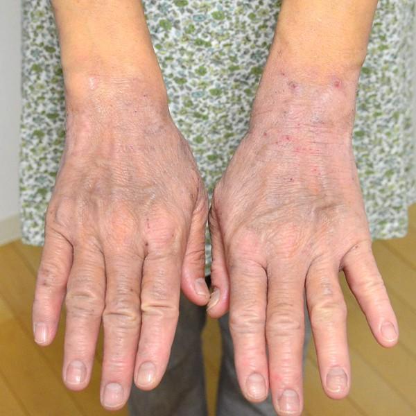 施術で安定してきた手のアトピー