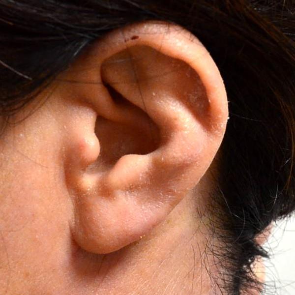 症例写真 大人 アトピー 耳
