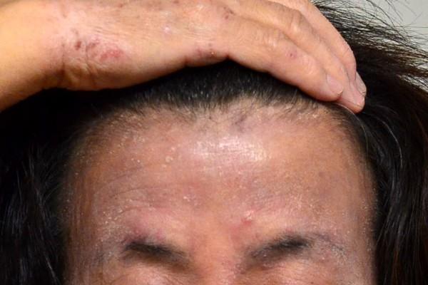 保湿依存で悪化した顔のアトピー