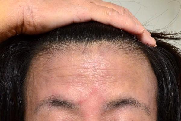 施術で安定してきた顔のアトピー