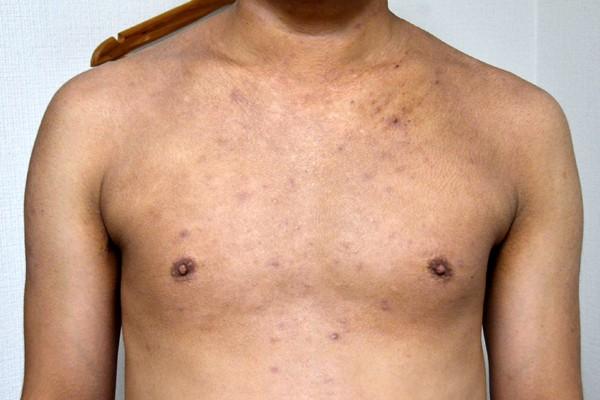 ステロイドで肌の機能が低下したアトピー