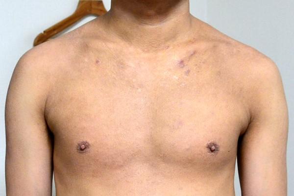 脱ステと施術で肌のターンオーバーが改善してきたアトピー