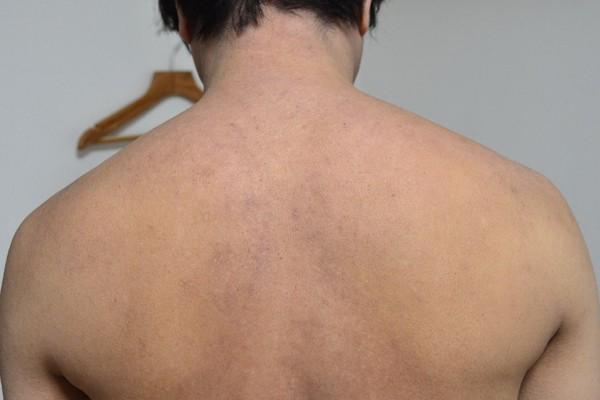 症例写真 大人 アトピー 背中 肩