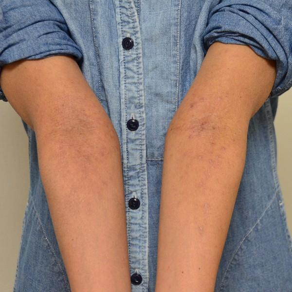 施術によりターンオーバーが改善してきた肘のアトピー