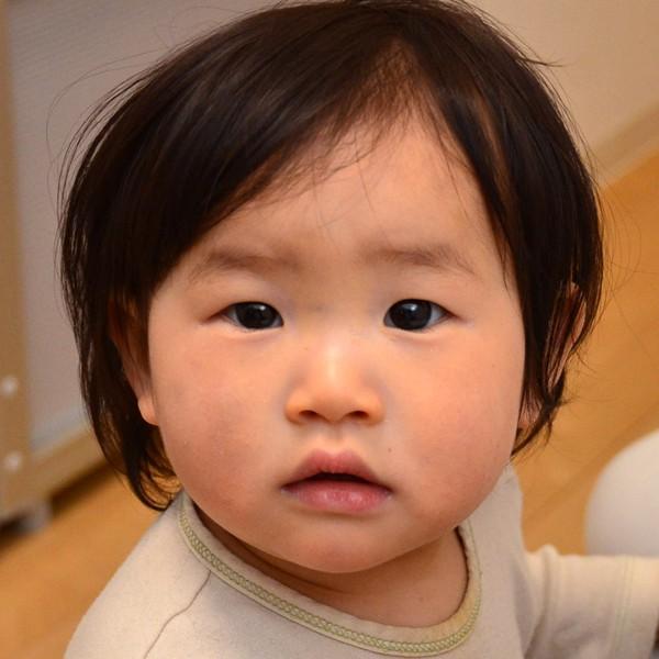 症例写真 赤ちゃん アトピー 顔