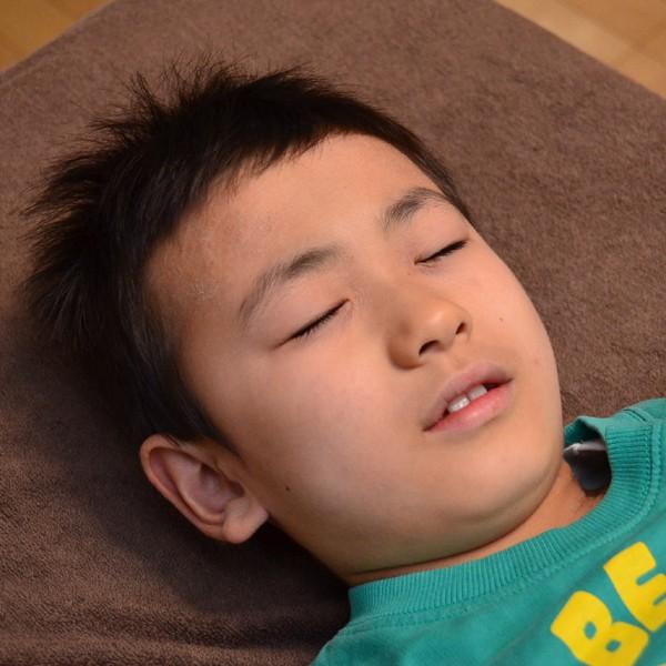 症例写真 小学生 子供 アトピー 顔