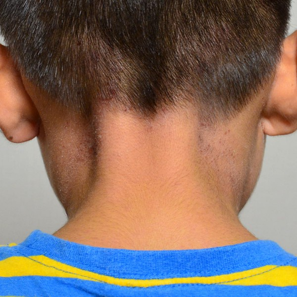 症例写真 小学生 子供 アトピー 首