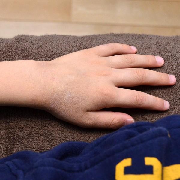 脱ステ、脱保湿、施術で改善してきた子供のアトピー