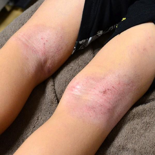 腰の硬さで悪化した膝裏のアトピー