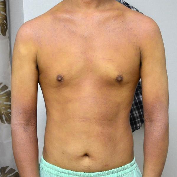 症例写真 大人 アトピー 上半身 お腹 胸 腕