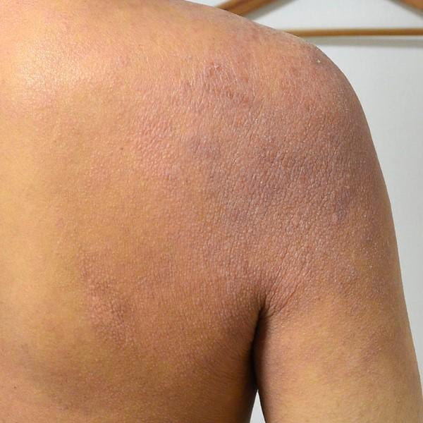 肌の機能が低下して肩のアトピー