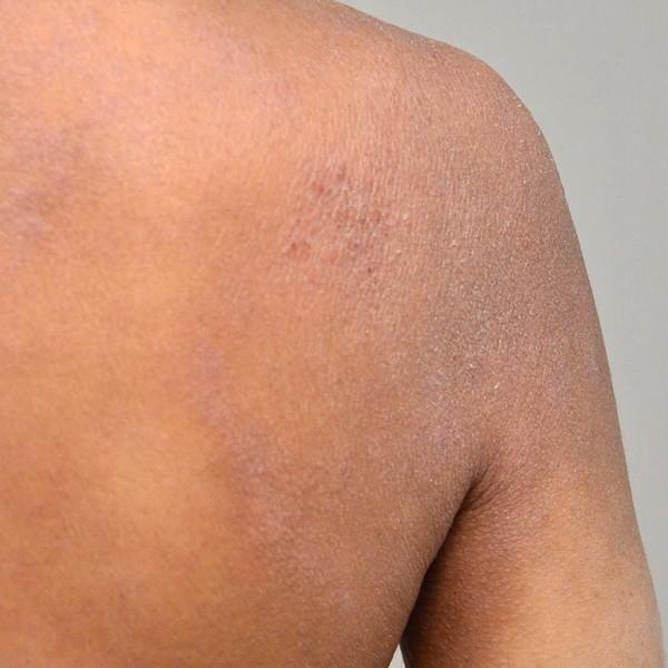 症例写真 大人 アトピー 肩 肩甲骨