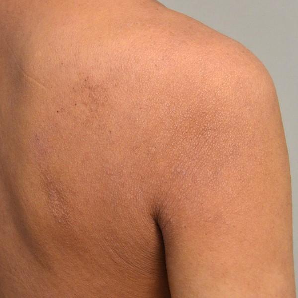 肌のターンオーバーが回復してきた肩のアトピー