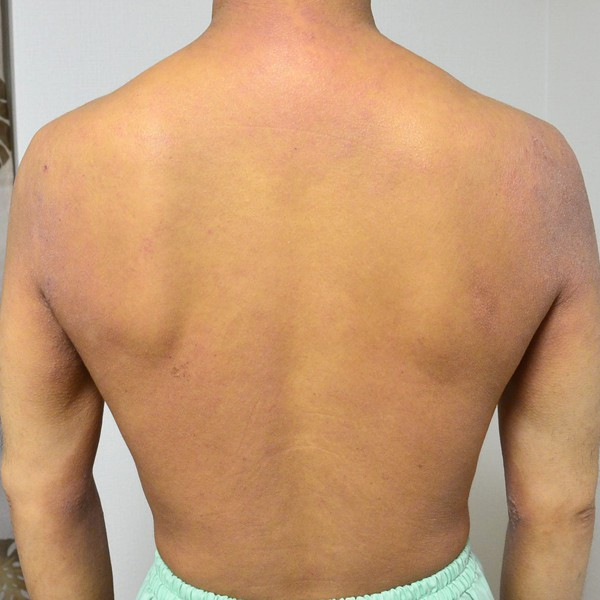 症例写真 大人 アトピー 上半身 背中 腰 肩