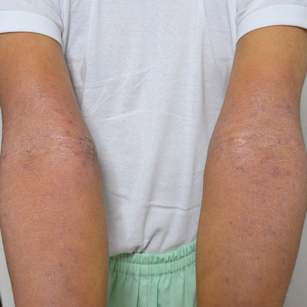 症例写真 大人 アトピー 手 腕 肘