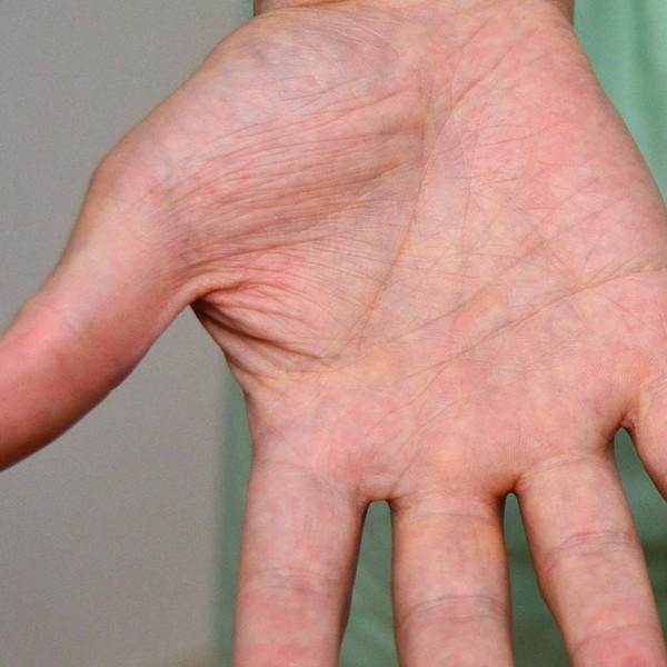 症例写真 大人 アトピー 手 指の間