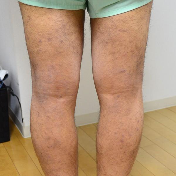 症例写真 大人 アトピー足 膝裏
