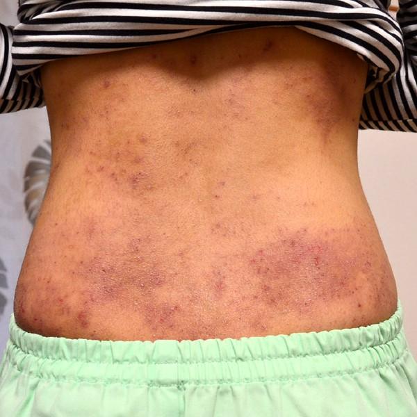 ステロイドで悪化した湿疹