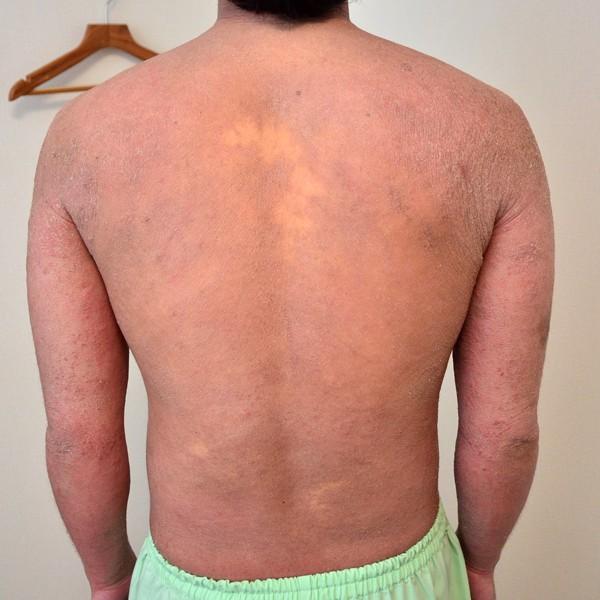 症例写真 大人 アトピー 上半身 腰 背中 肩