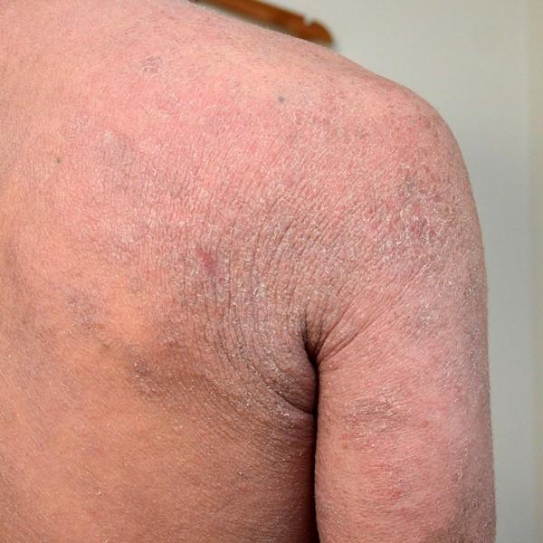 ターンオーバーが乱れた肩のアトピー