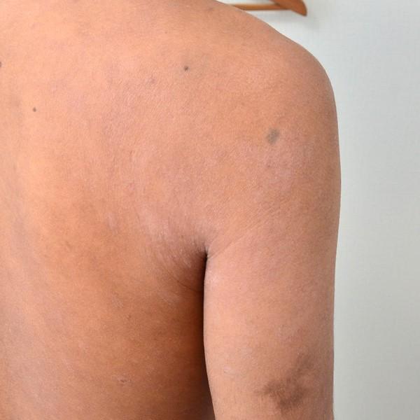 施術で改善してきた肩のアトピー