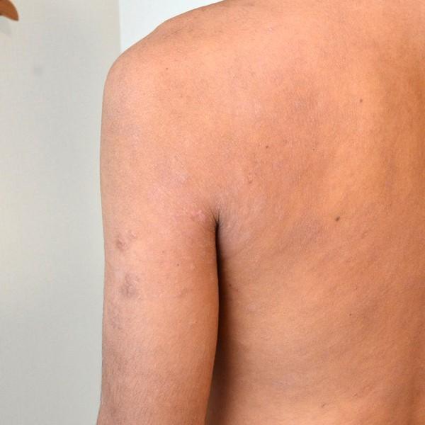 症例写真 大人 アトピー 肩 脇 肩甲骨