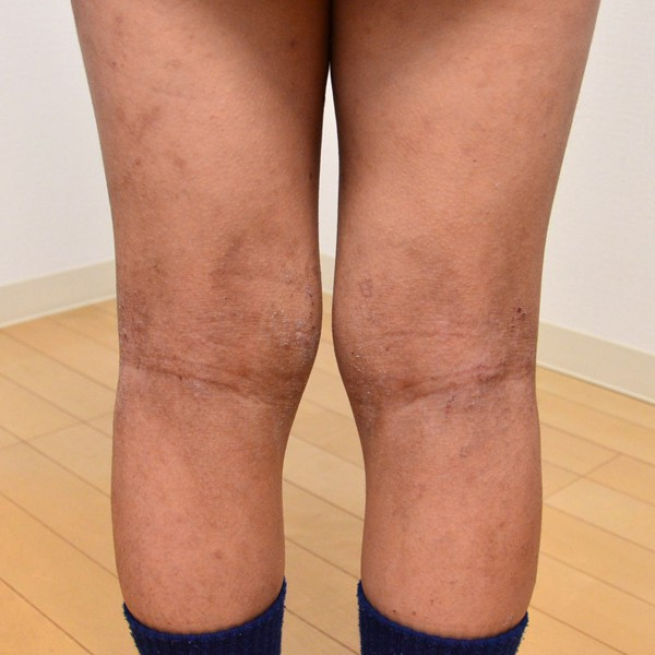 症例写真 子供 アトピー 足 膝裏