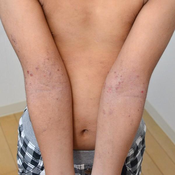 症例写真 子供 アトピー 腕 肘