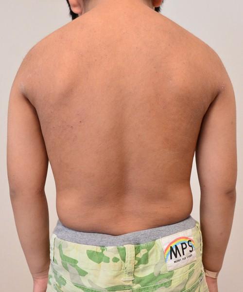 症例写真 子供 アトピー 上半身 腰 背中 肩